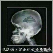 这是你脑袋的检查报告